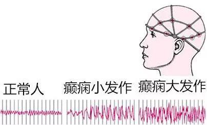 """蓝十字脑科_放下歧视与偏见!癫痫并非""""不治之症""""_上海蓝十字脑科医院 ..."""